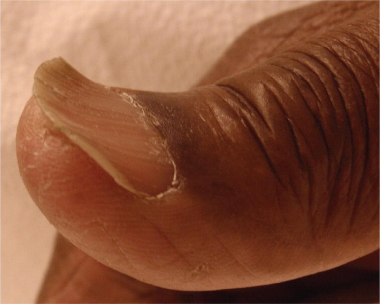 Spoon fingernail