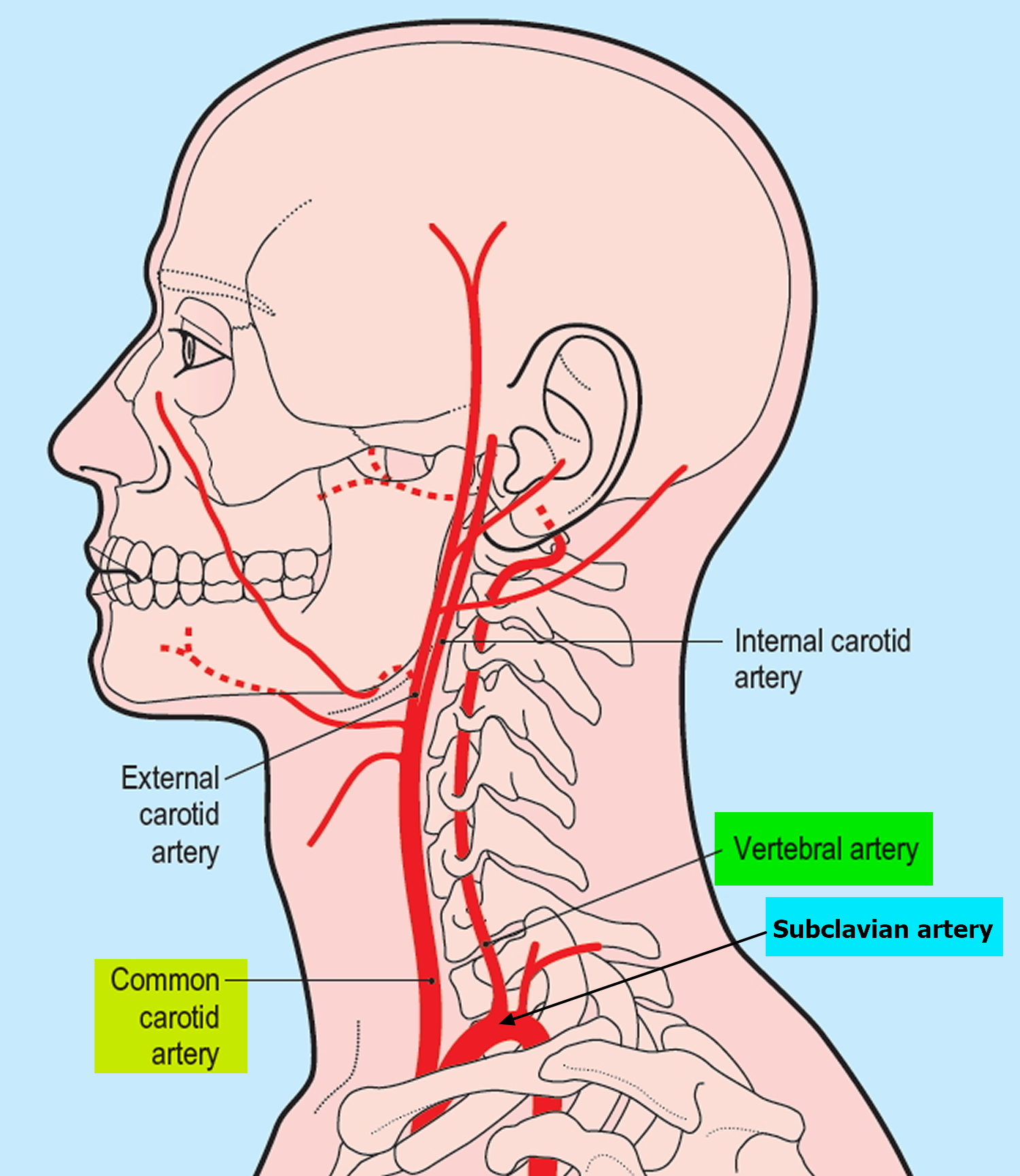 Vertebral Artery Segments, Stenosis and Artery Dissection Symptoms