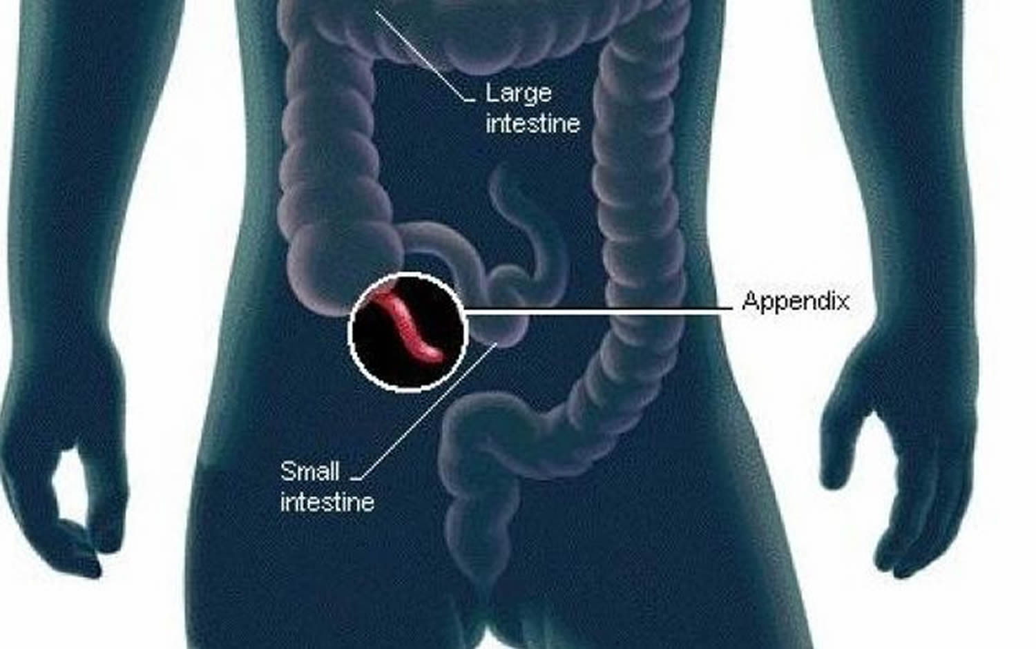 Human Appendix - Anatomy, Location and Function of Appendix
