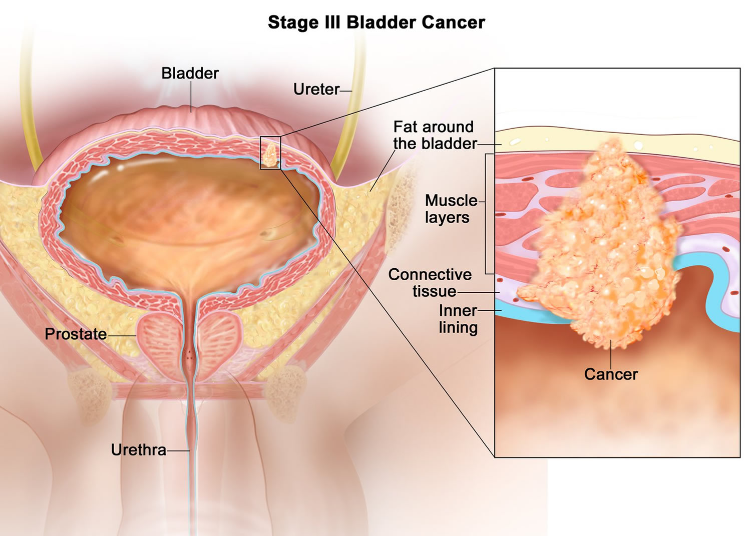 bladder-cancer