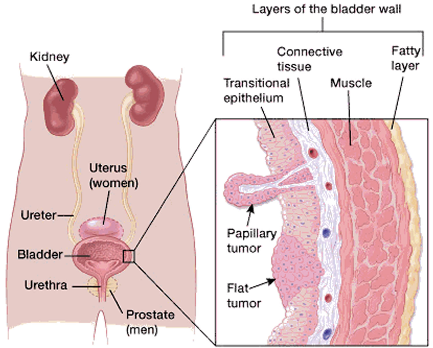 bladder-cancer-type