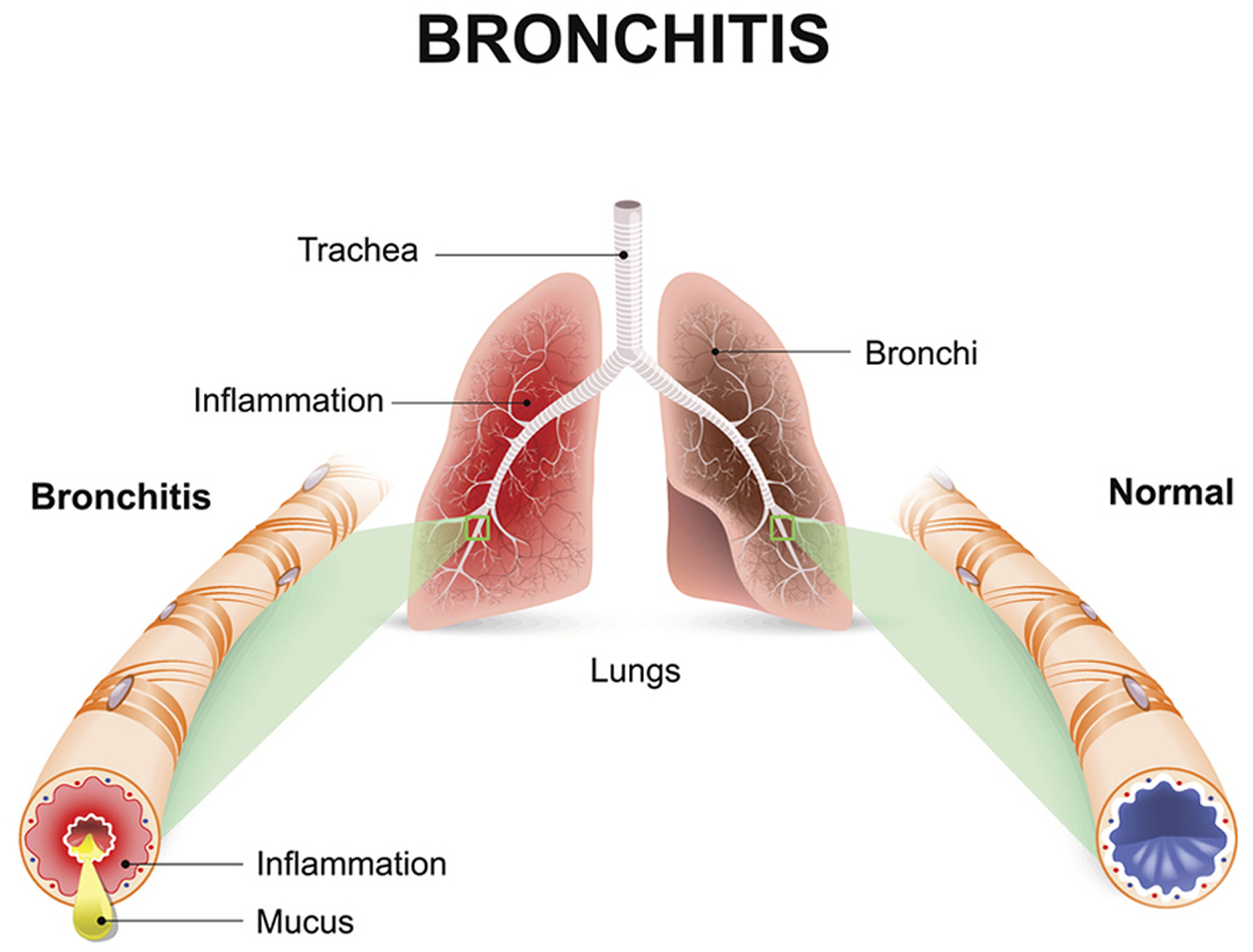bronchitis-symptoms