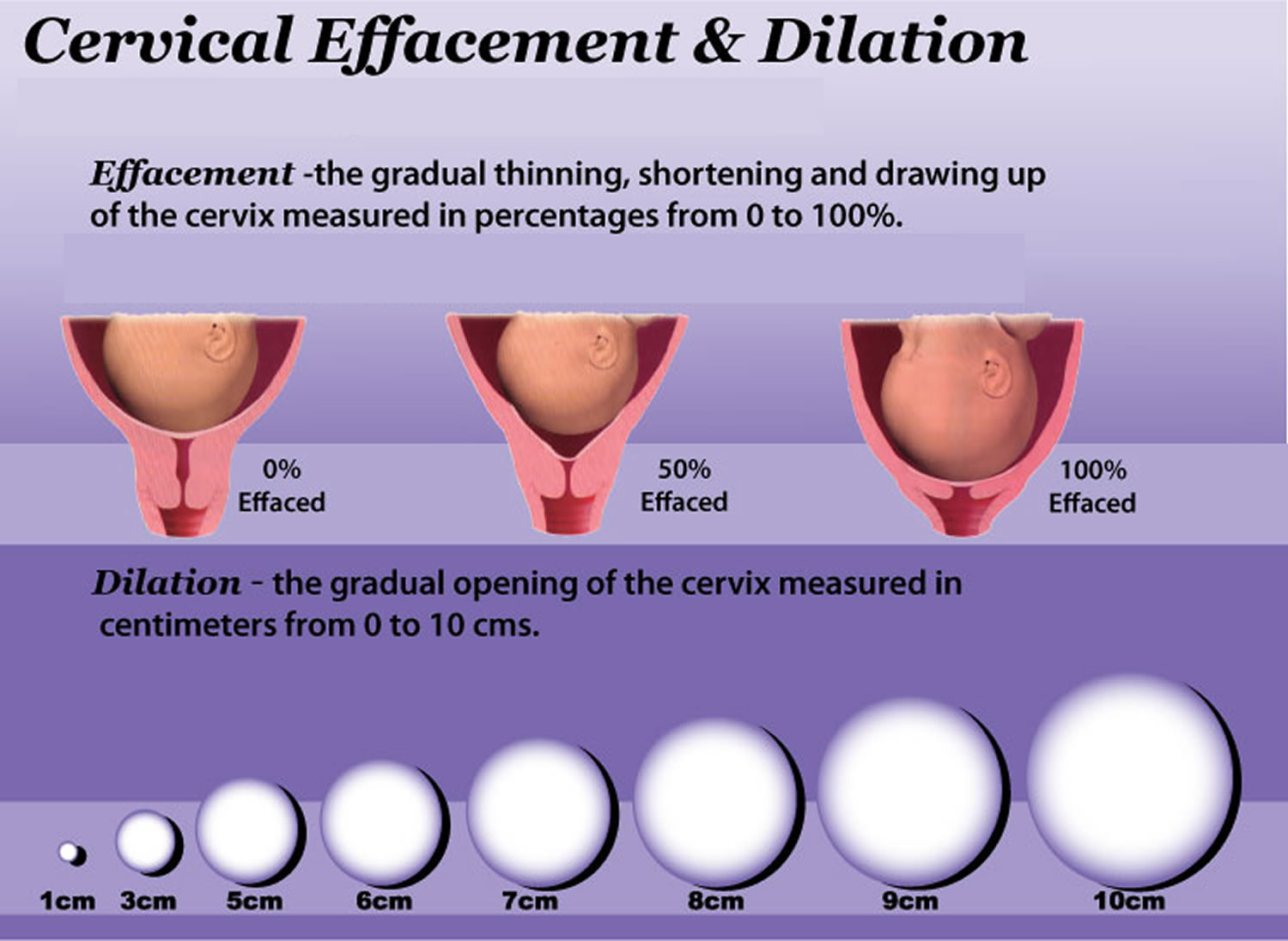 cervix effacement and dilatation