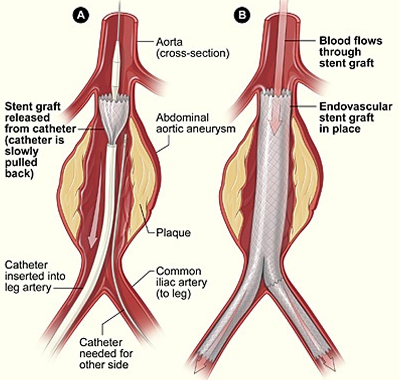 Iliac Artery And Vein Common Iliac Artery 2019 01 24