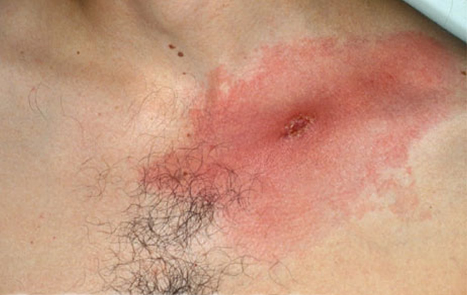 expanding lyme disease rash with central crust