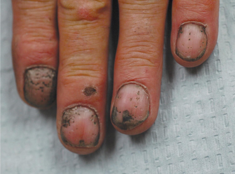 fingernail pitting of psoriasis