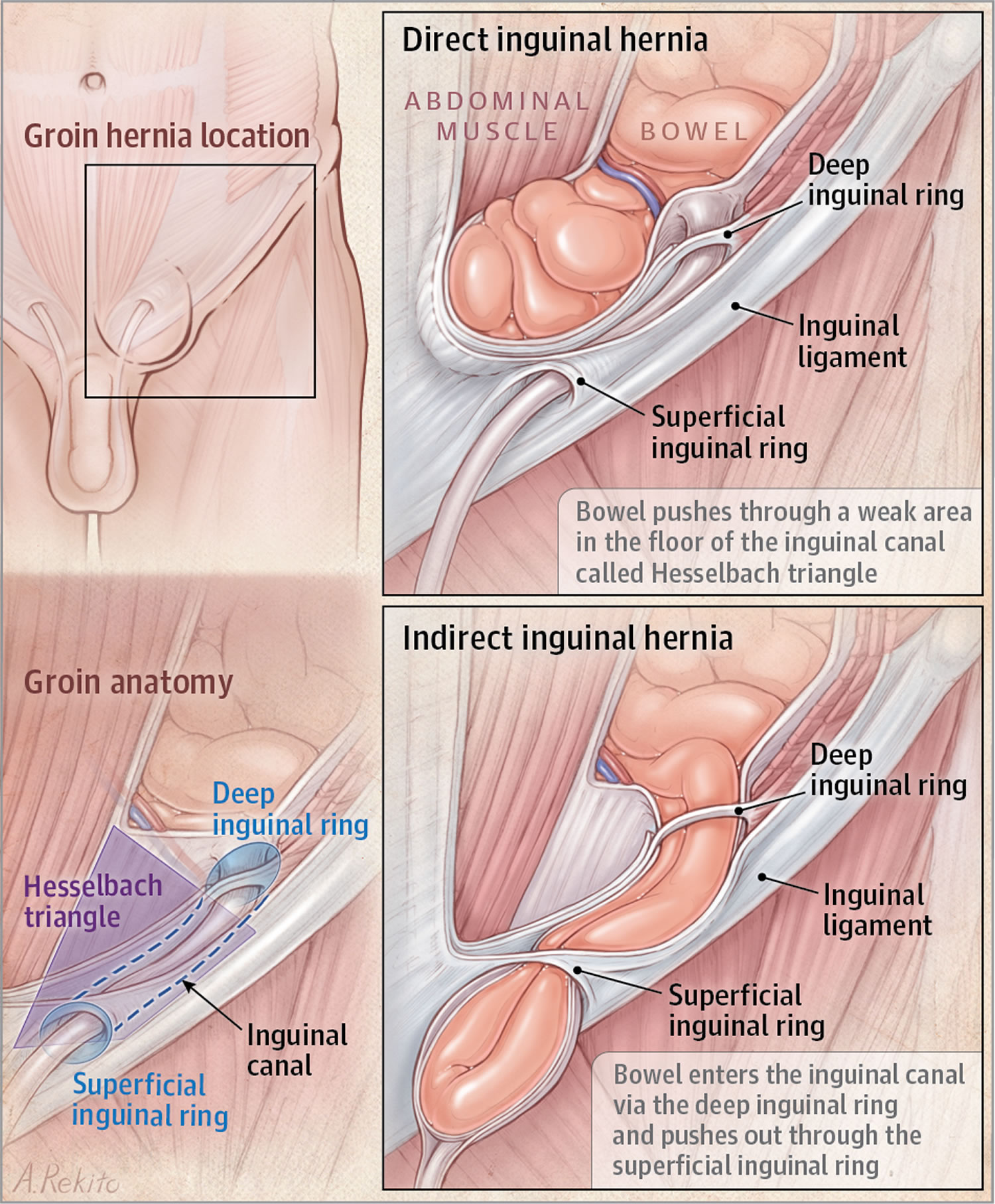 Vas Deferens - Anatomy - Location - Function - Pain