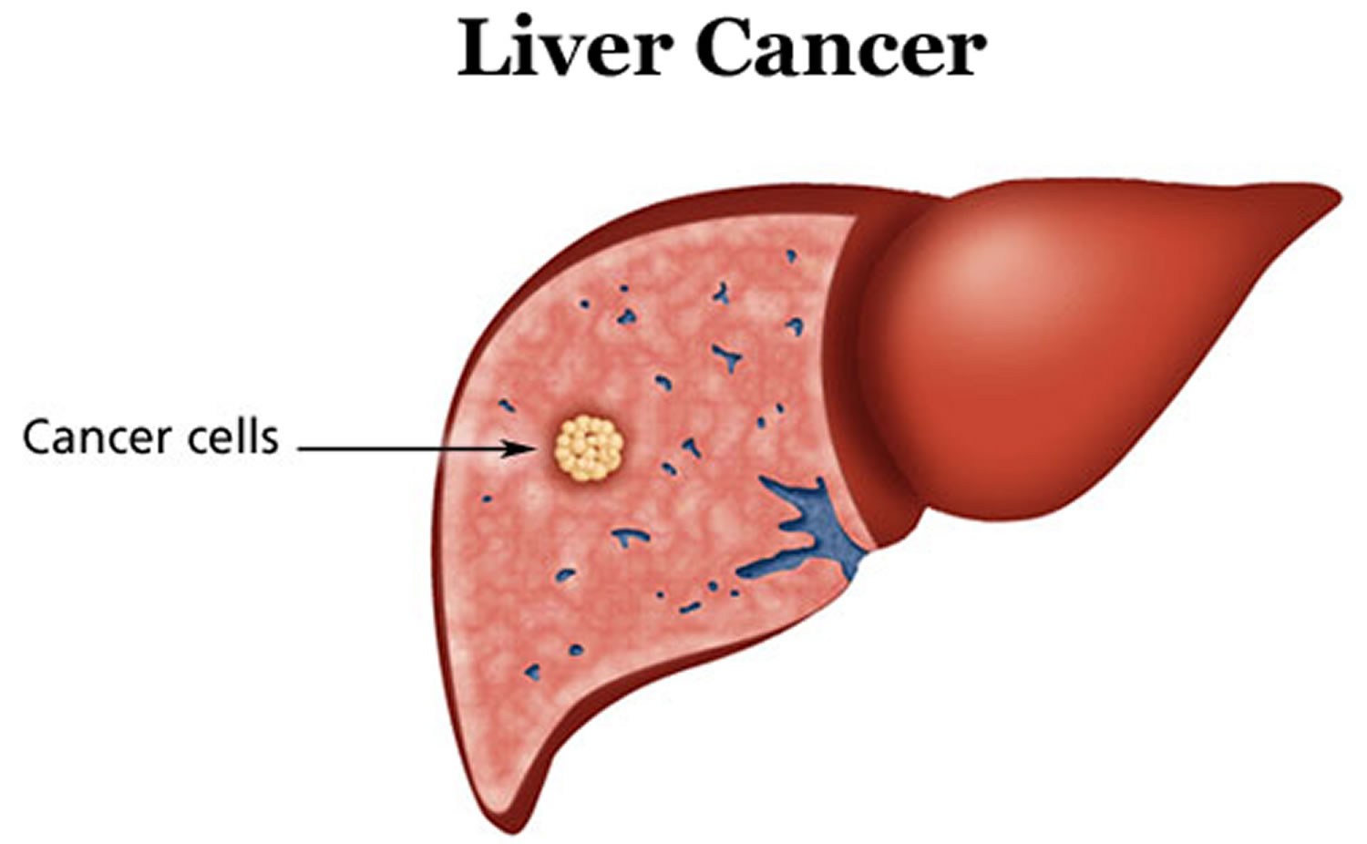 Prognosis Of Liver Cancer