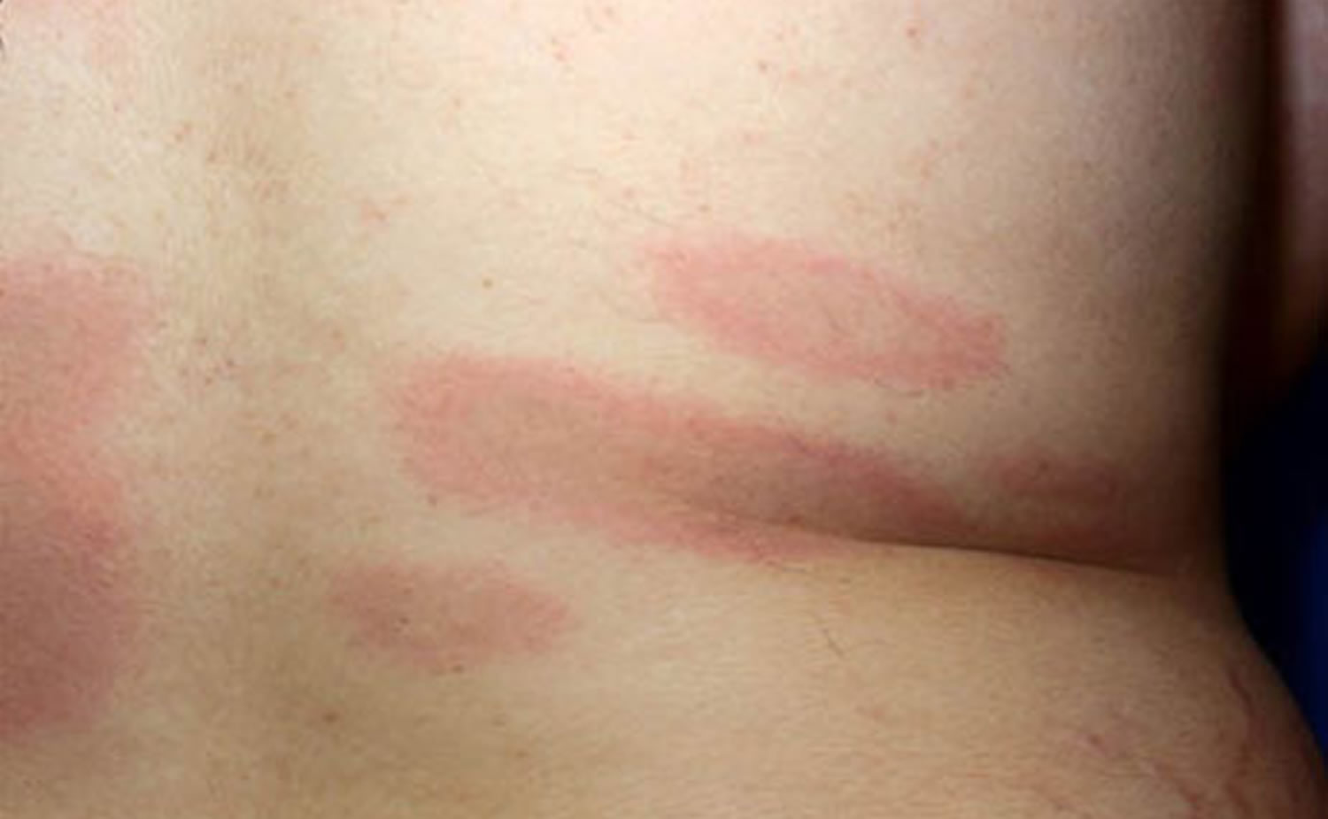lyme disease multiple rashes