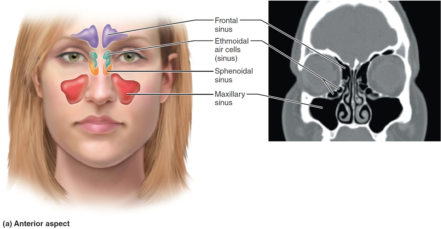 Sinus Infection - Causes, Symptoms, Diagnosis, Treatment ...
