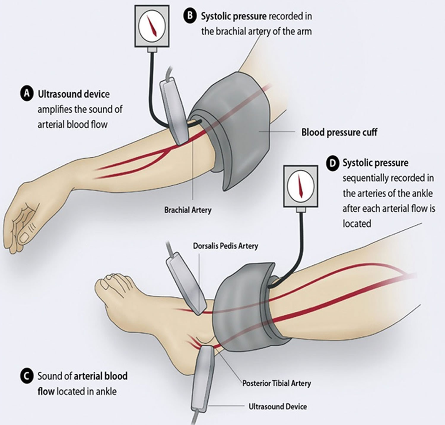 Peripheral Artery Disease - Causes, Symptoms & Treatment