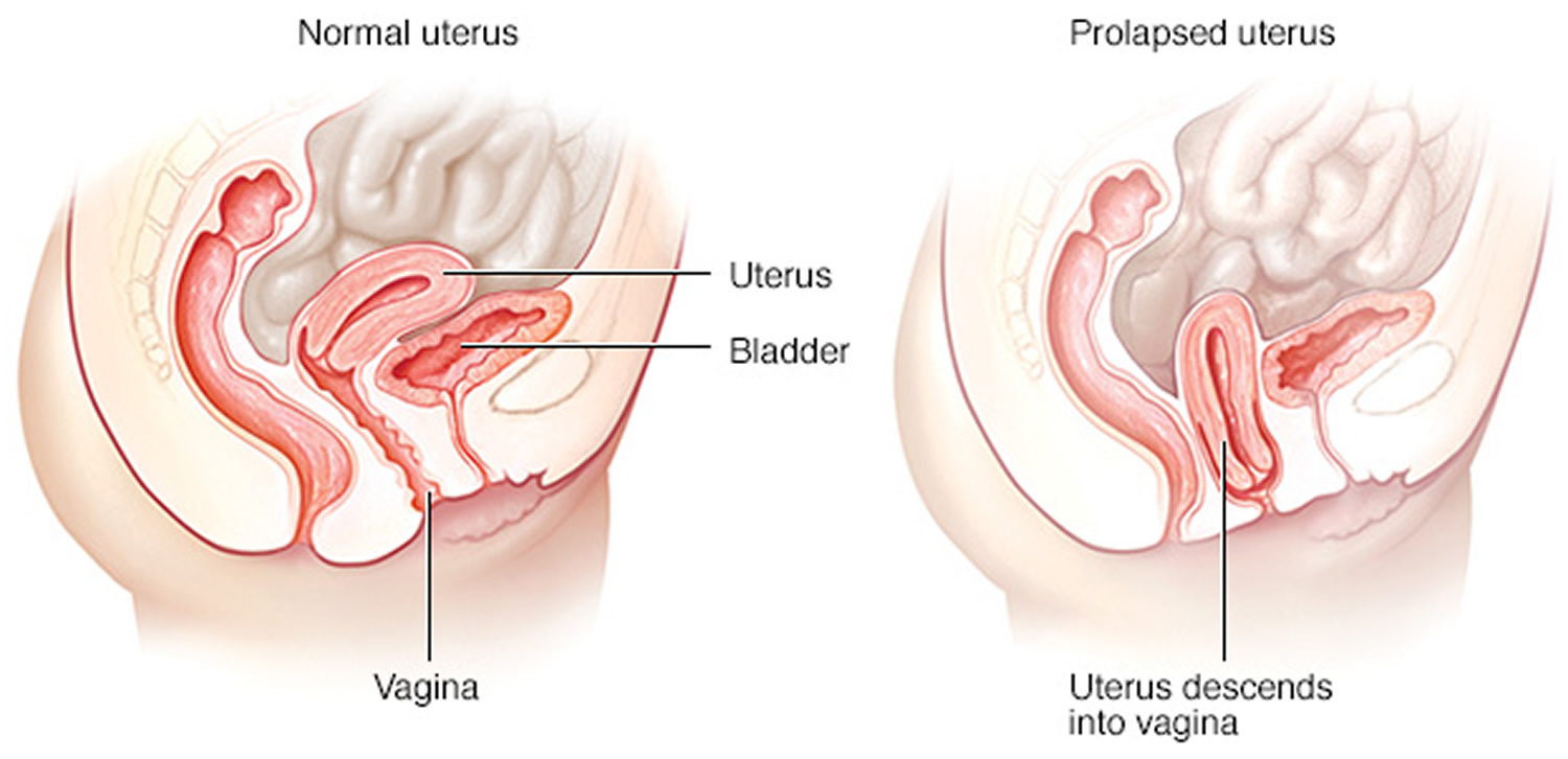 Watch What Is Vaginal Prolapse video