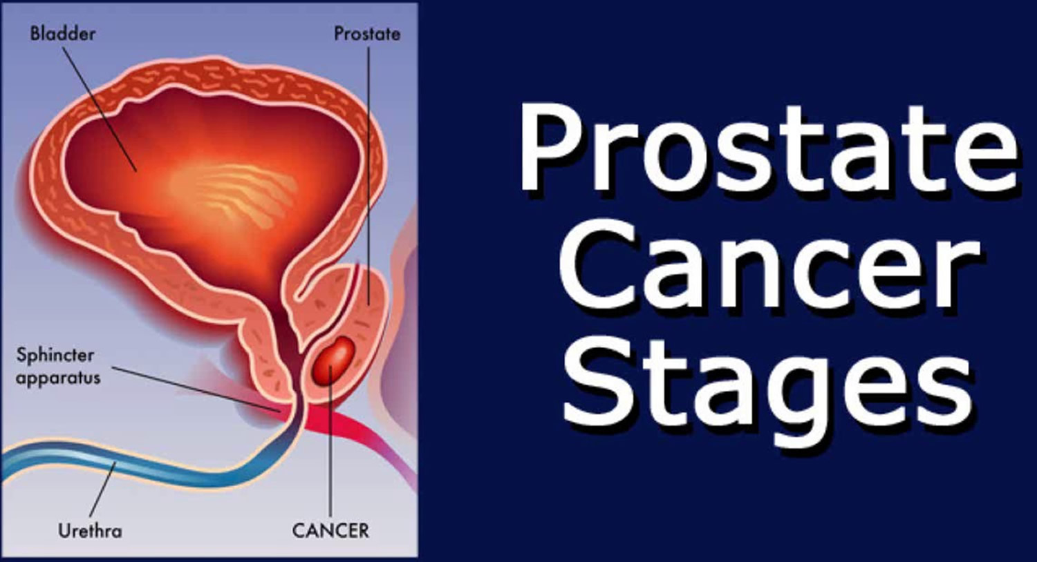 Prostate Cancer Healthy Foods