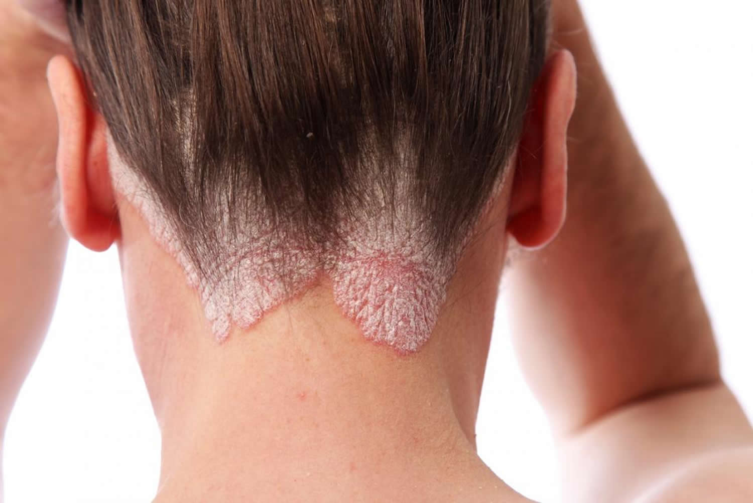 Red spots on the head: psoriasis and not only