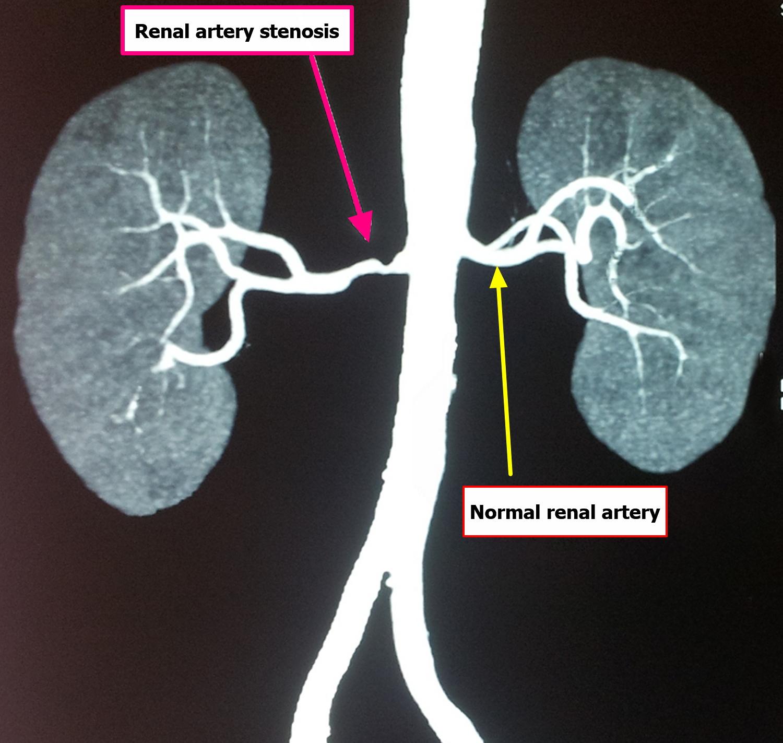renal-artery-stenosis