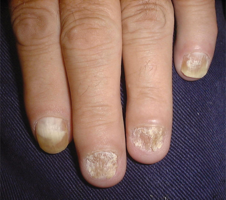 sandpaper nails