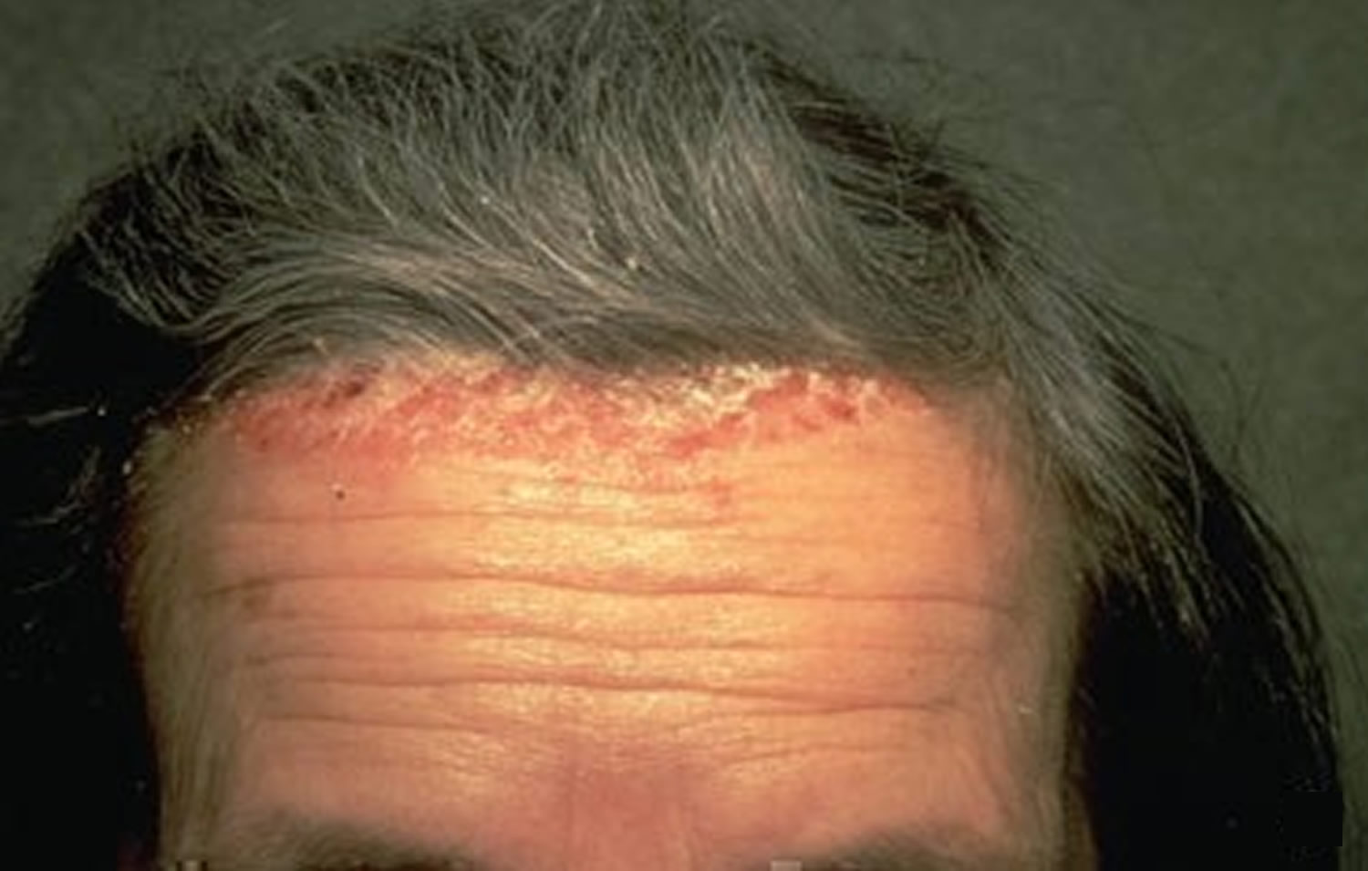 Scalp Psoriasis Causes Amp Treatment Options Natural