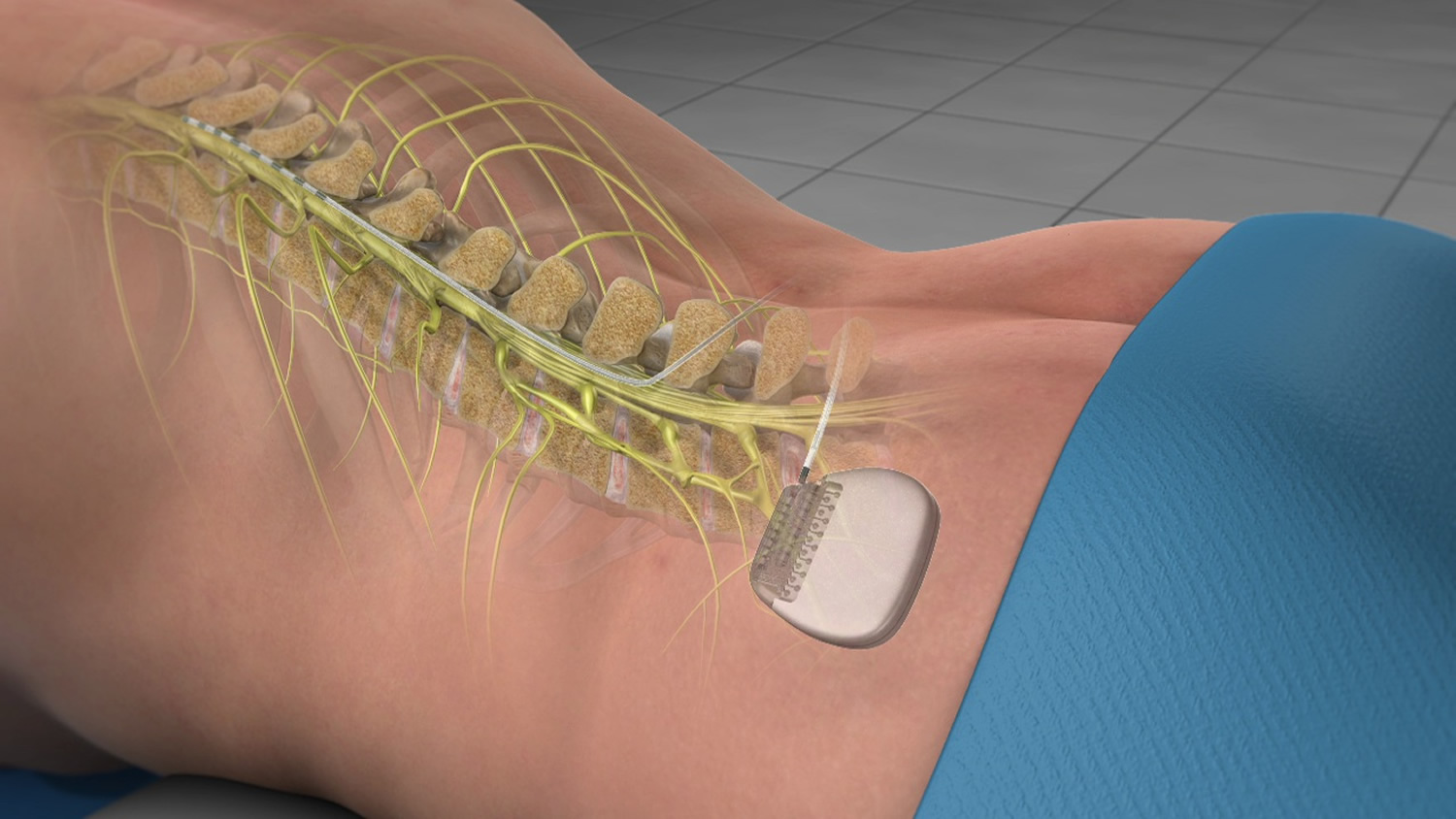 Spinal Cord Stimulator Implant Trial And Surgery Uses