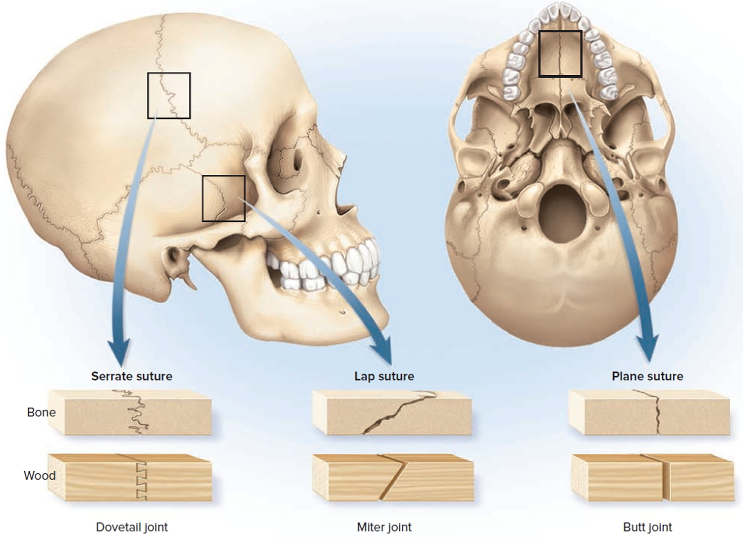 sutures joint