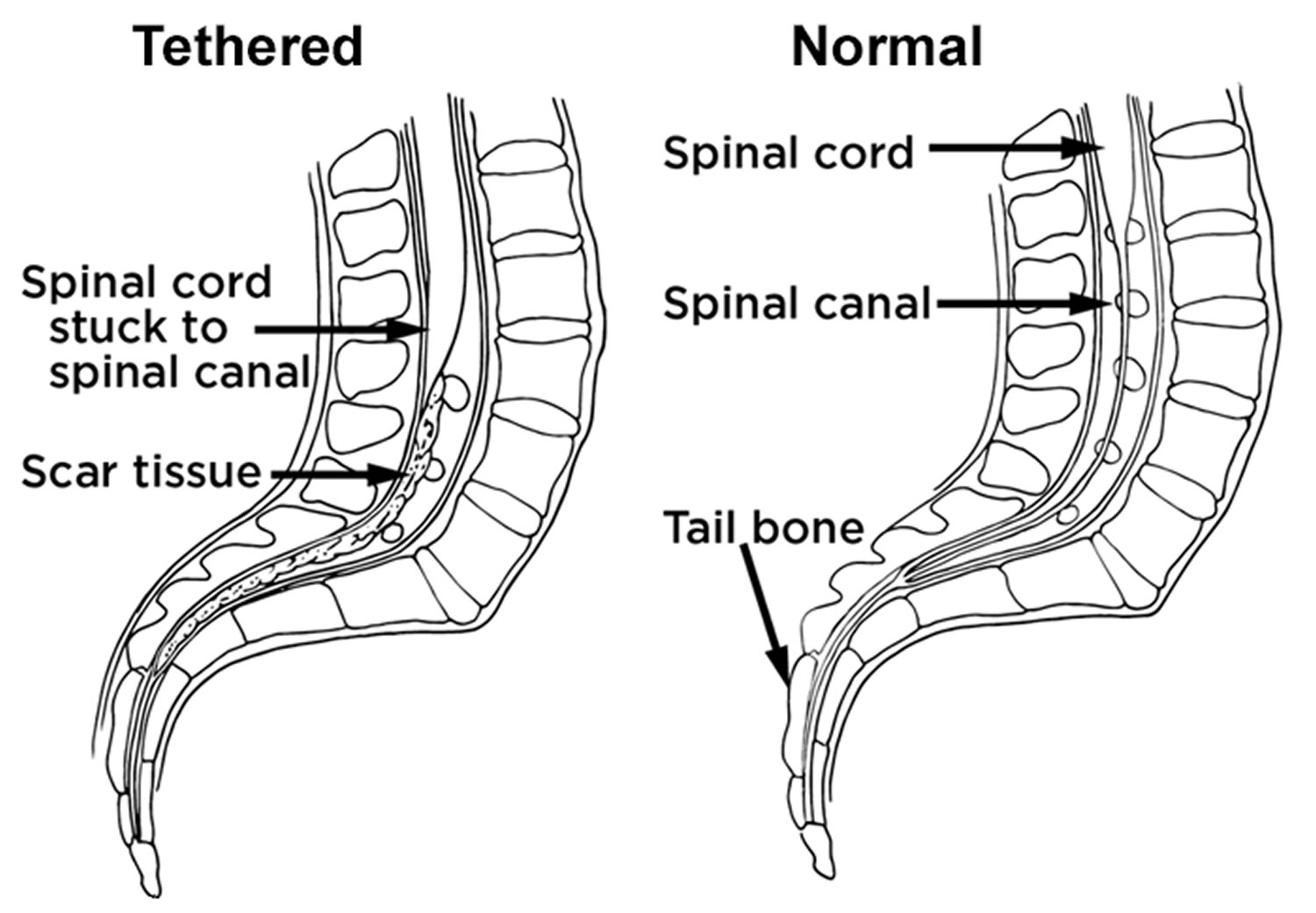 adult tethered cord surgery