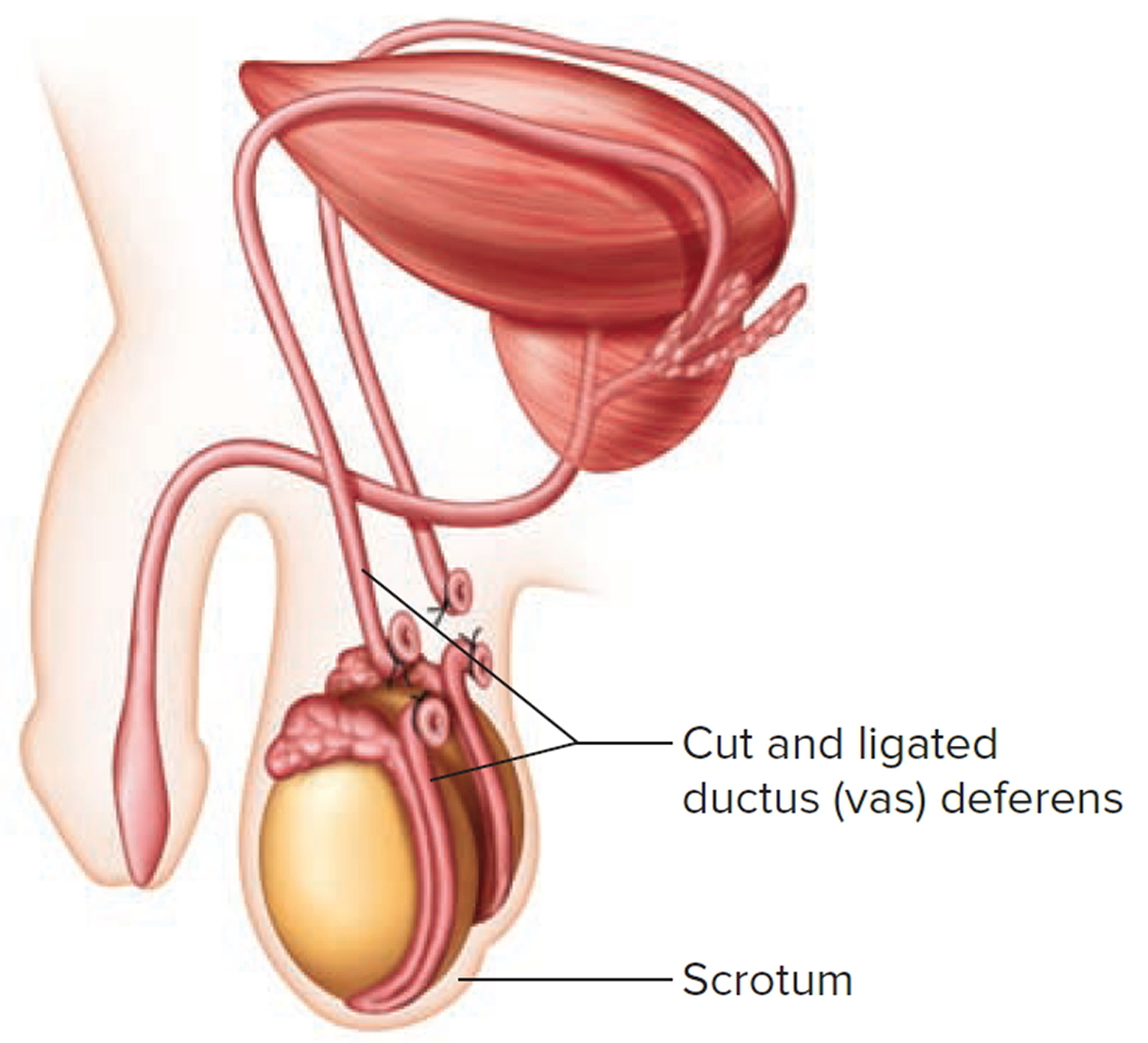 Vas Deferens Anatomy Location Function Pain