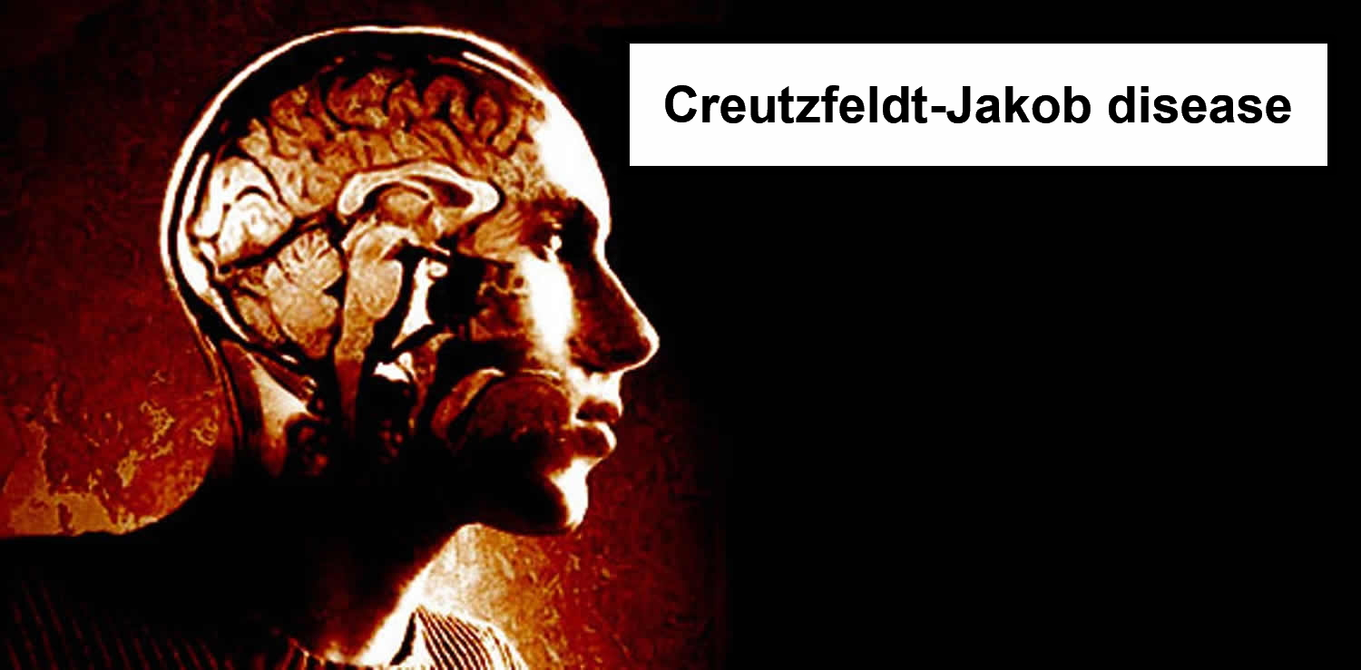 Creutzfeldt Jakob Disease Causes Symptoms Diagnosis Treatment