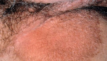 Erythrasma bacterial infection of inner thigh