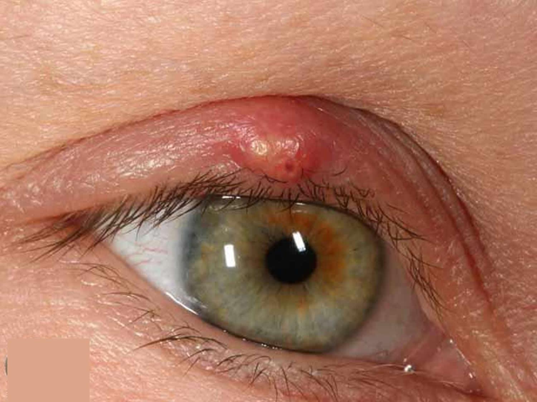 Eyelid hordeolum