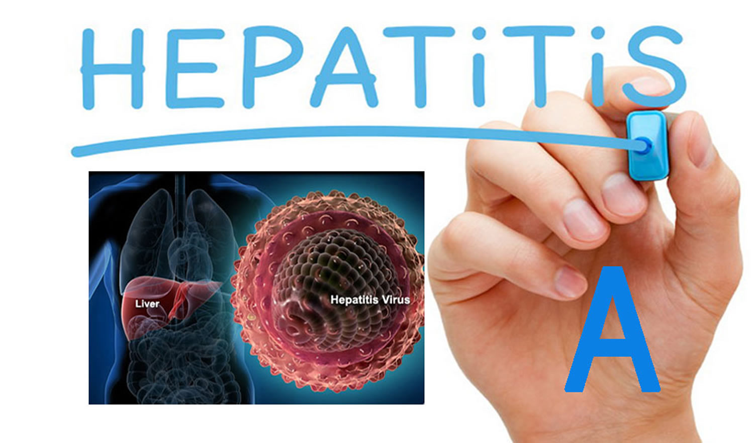 Hepatitis A - How Do You Get & Is Hepatitis A Curable - photo#6