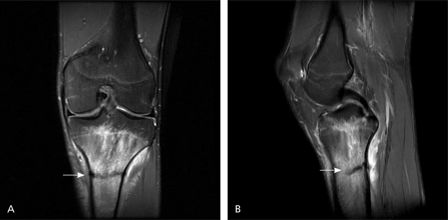 Stress fracture shin -MRI image