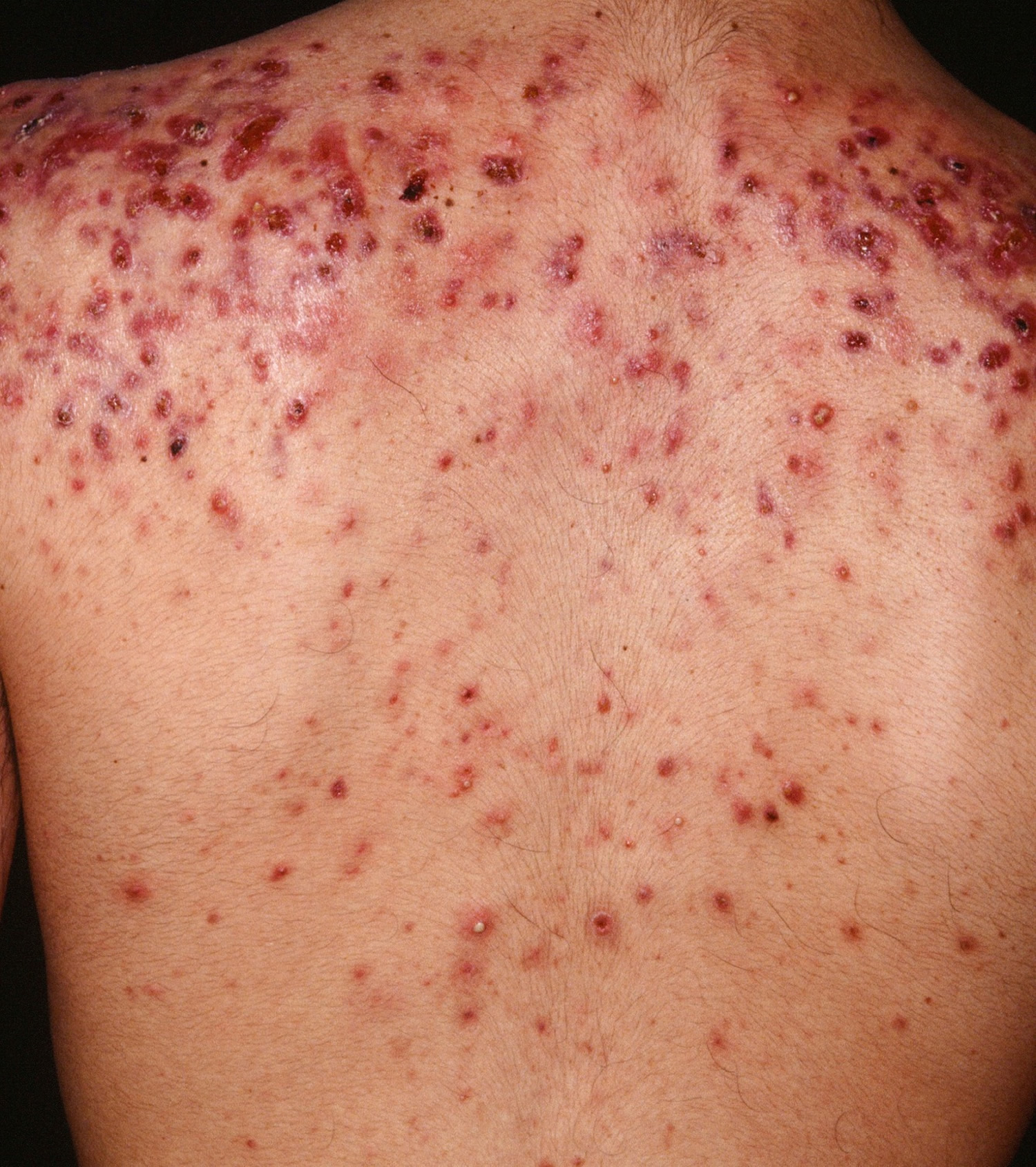 how to avoid back acne