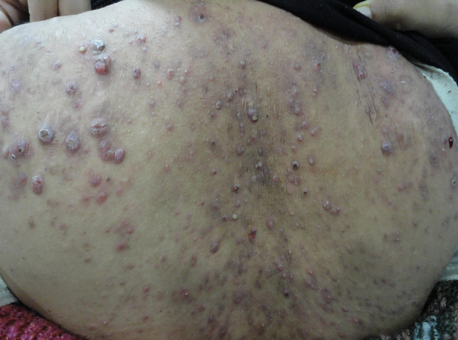 Back Acne Causes and Best Treatment to Get Rid of Back ...