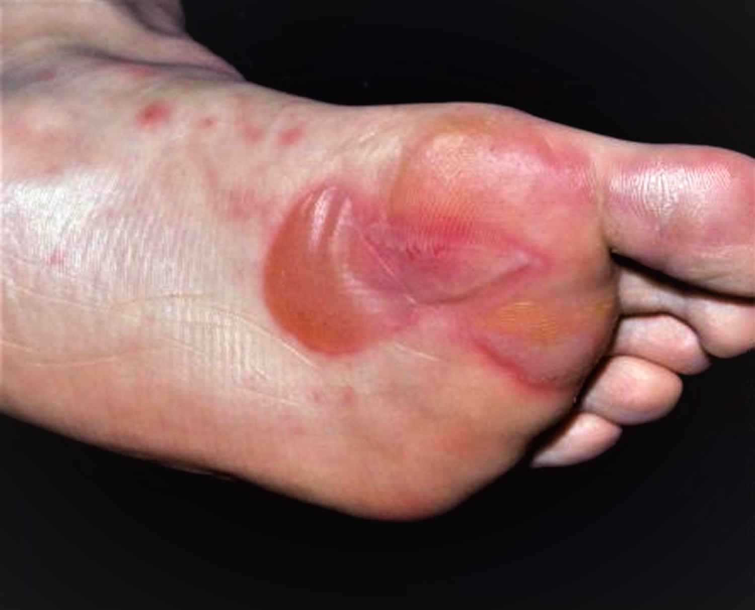 Blister on Foot - Causes and How To Treat Foot Blisters