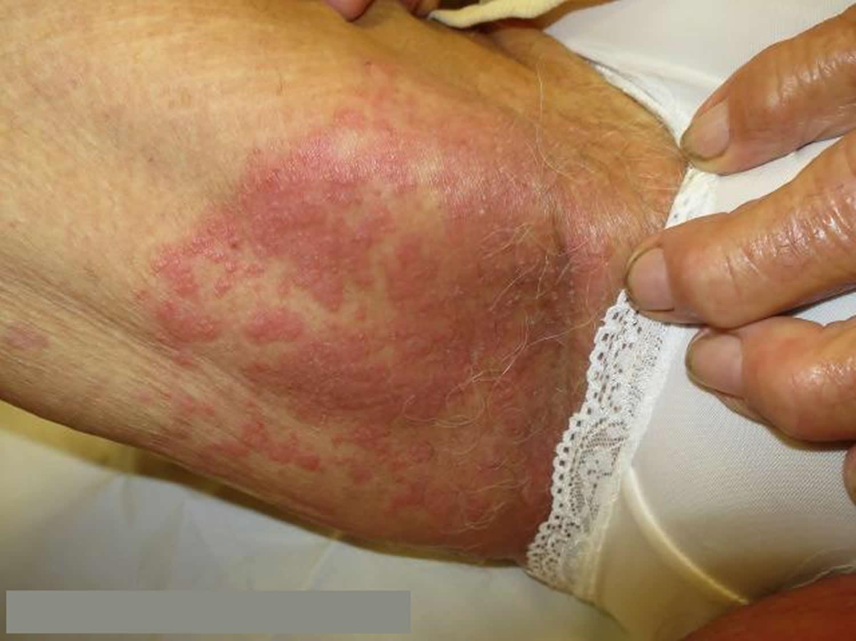 Armpit Rash - Itchy, Candida - Causes  Treatment-5848