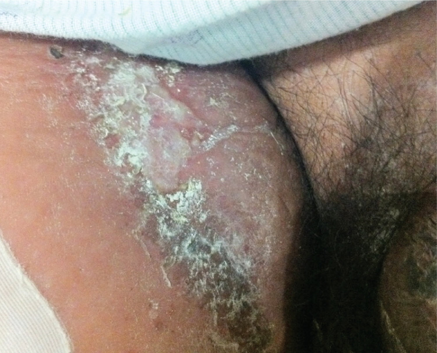 candida infection of inner thigh