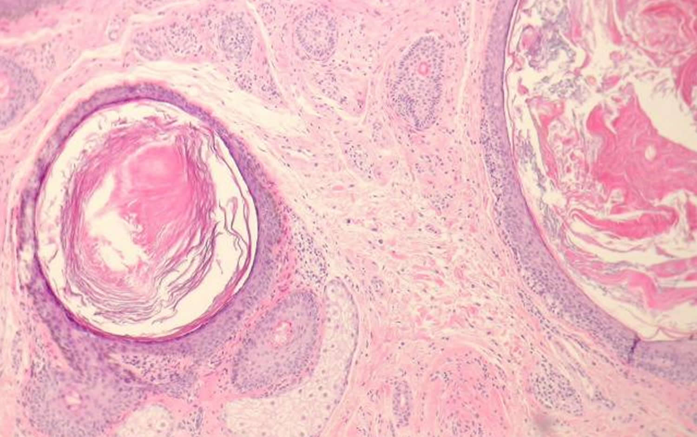 clogged pores histology