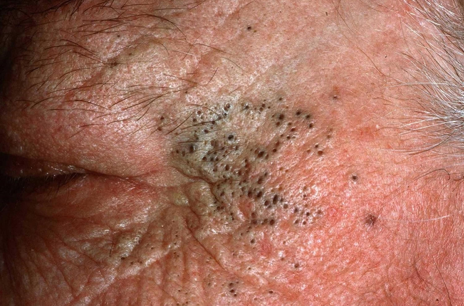 acne amp pimples caises best treatment to get rid of acne