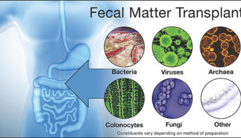 fecal transplant