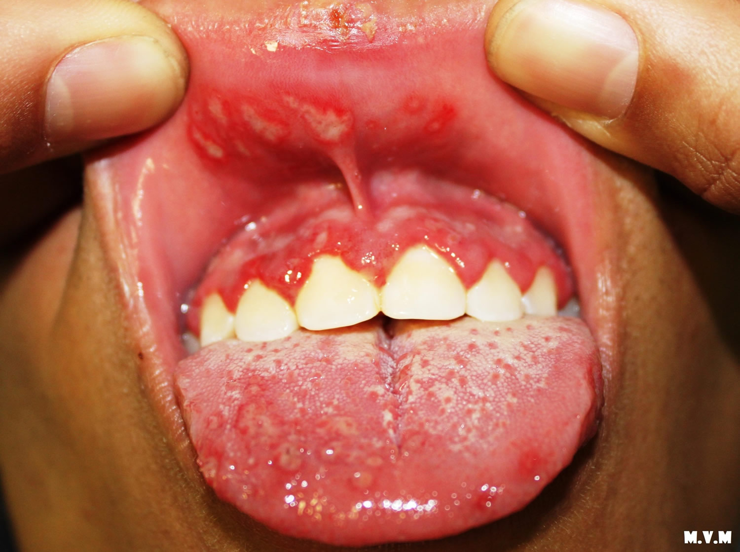 Under tongue hurts after kissing being sexual orientation