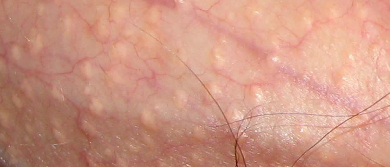 fordyce spots penis