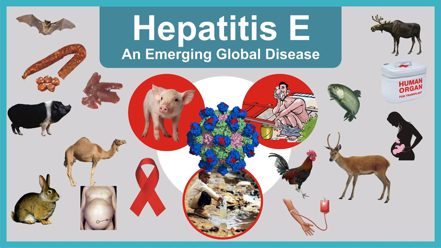 What Is Hepatitis E