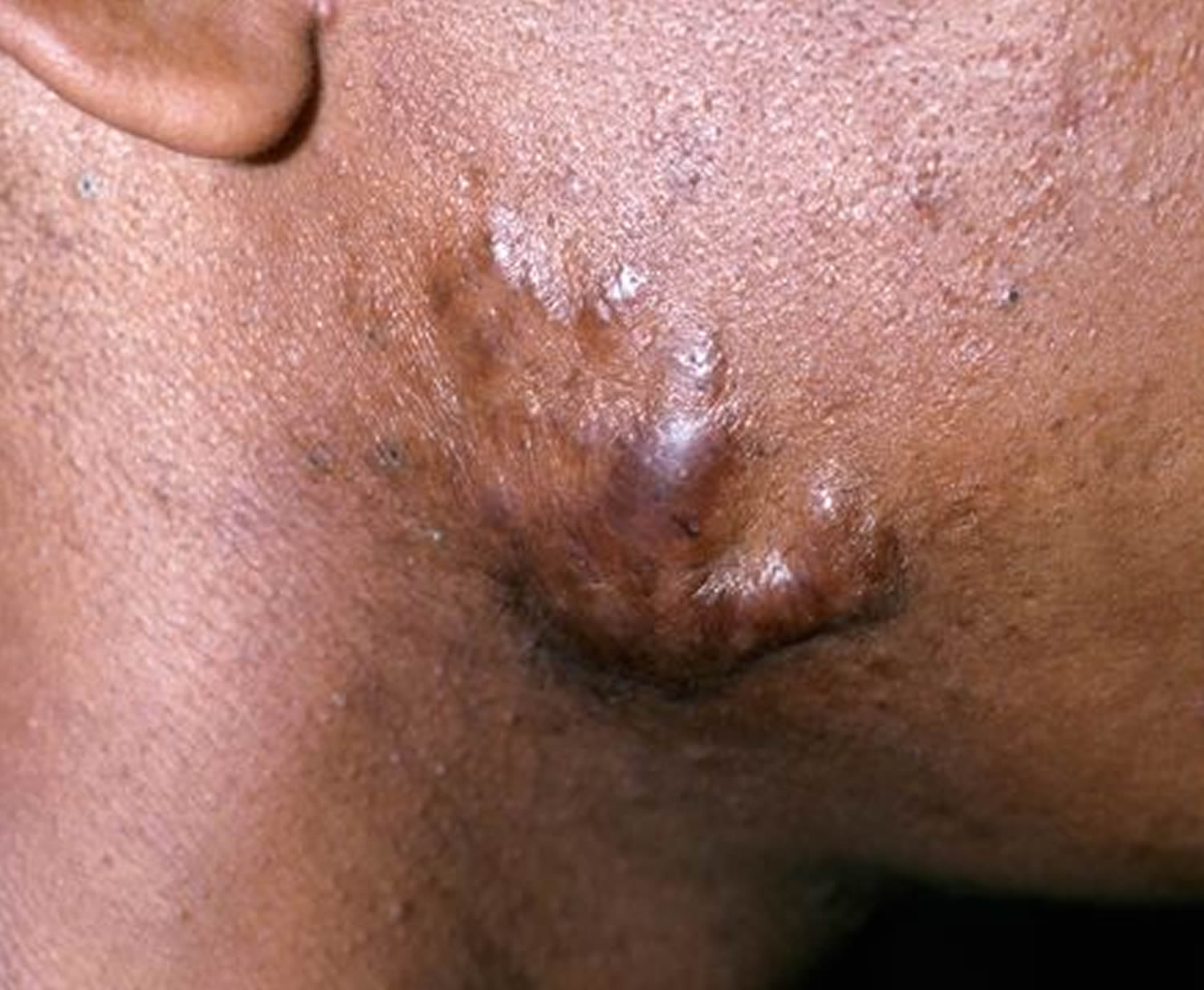 keloid_after acne