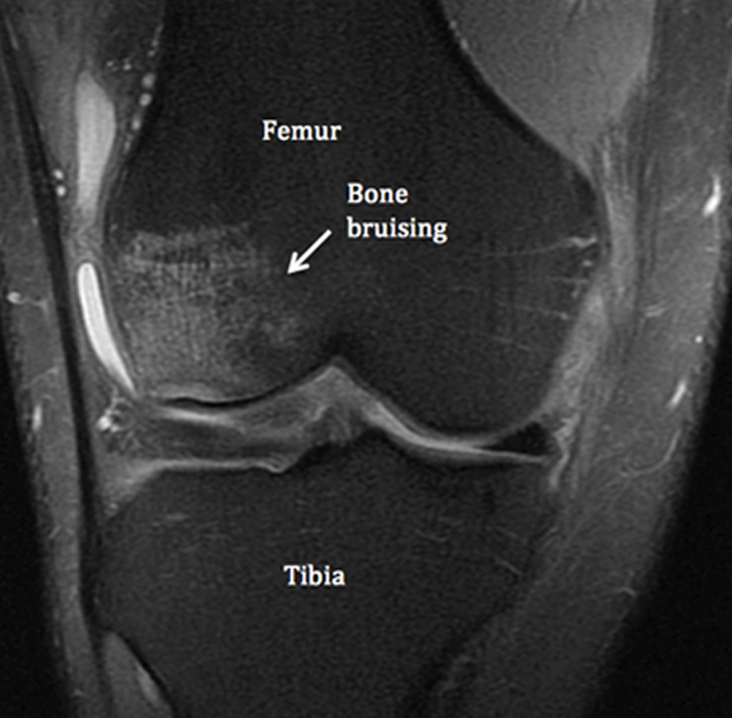 Bone Bruise Causes Symptoms Diagnosis Treatment Healing Time