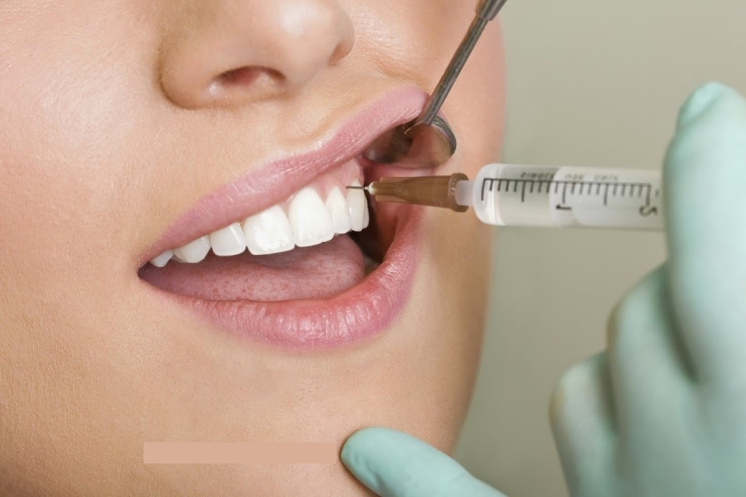 local anesthesia in dentistry