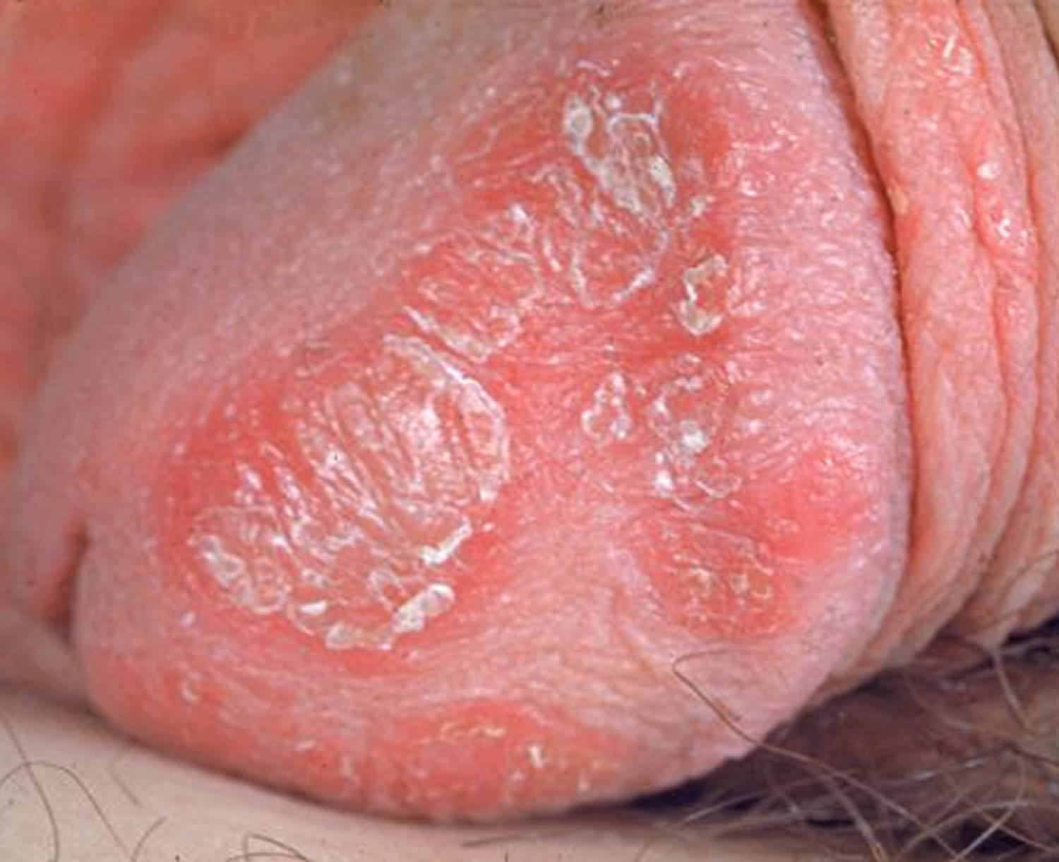 Nsfw psoriasis of the penis