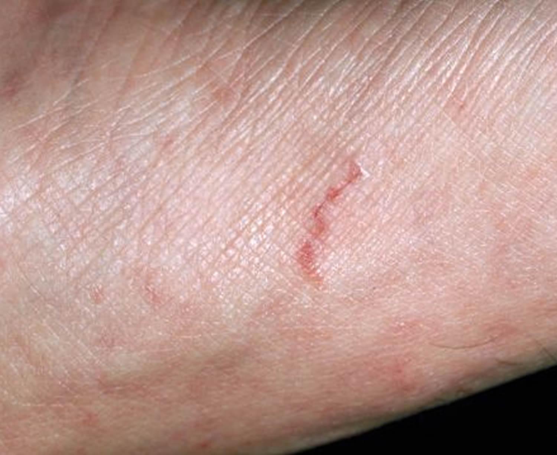 scabies rash tracks