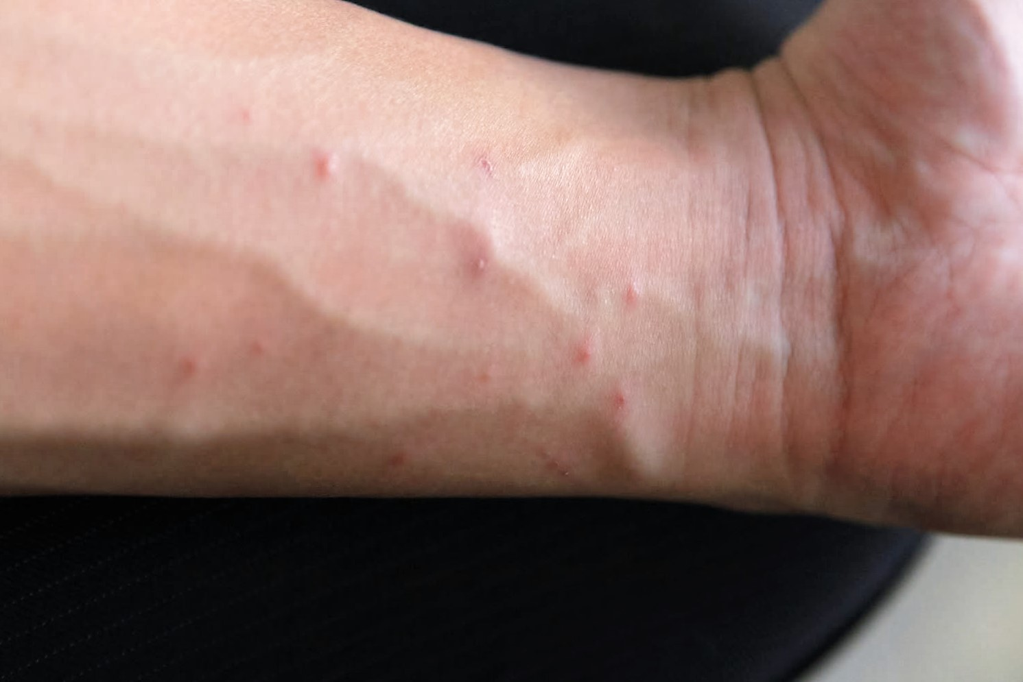 Scabies - Signs, Symptoms, OTC Treatment & Home Remedies
