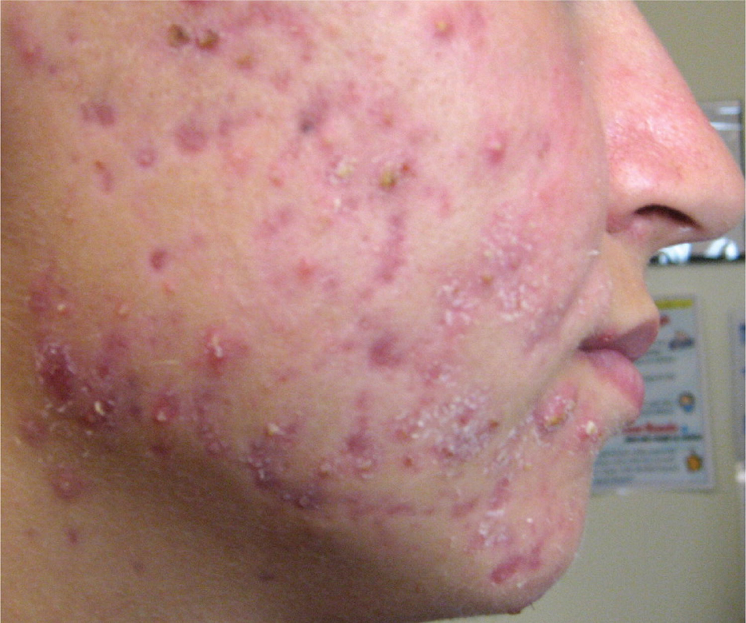 Acne Pimples Caises Best Treatment To Get Rid Of Acne And Pimples