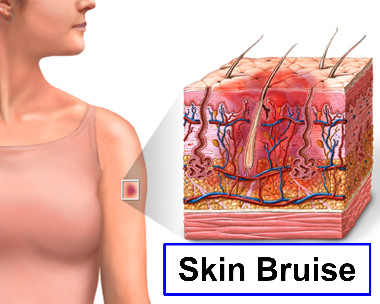 Bruise Causes Diagnosis Treatment Home Remedy And Healing Time
