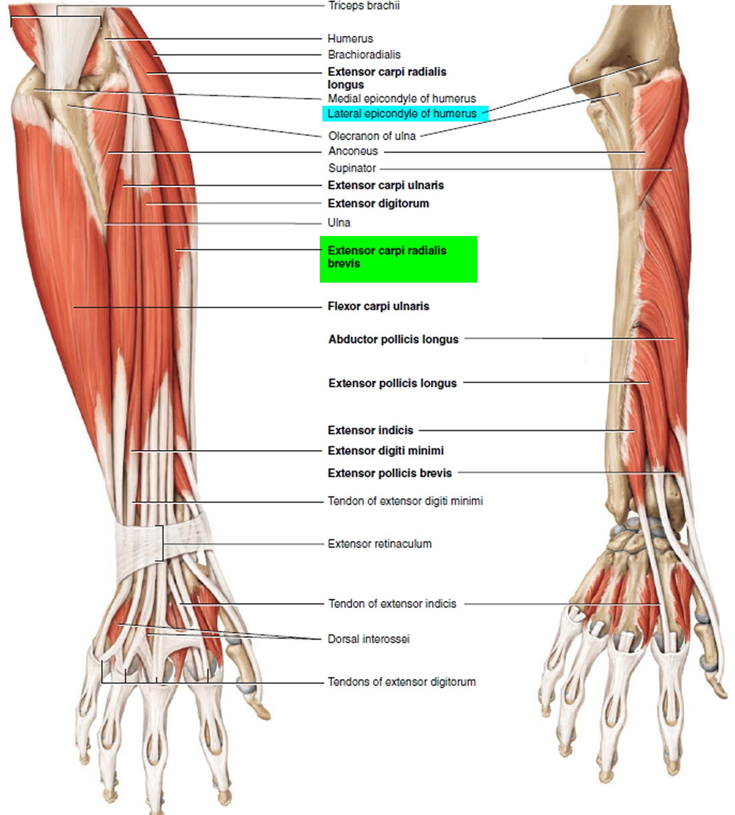 Tendonitis - Patellar, Peroneal, Knee, Foot, Wrist, Biceps, Shoulder ...